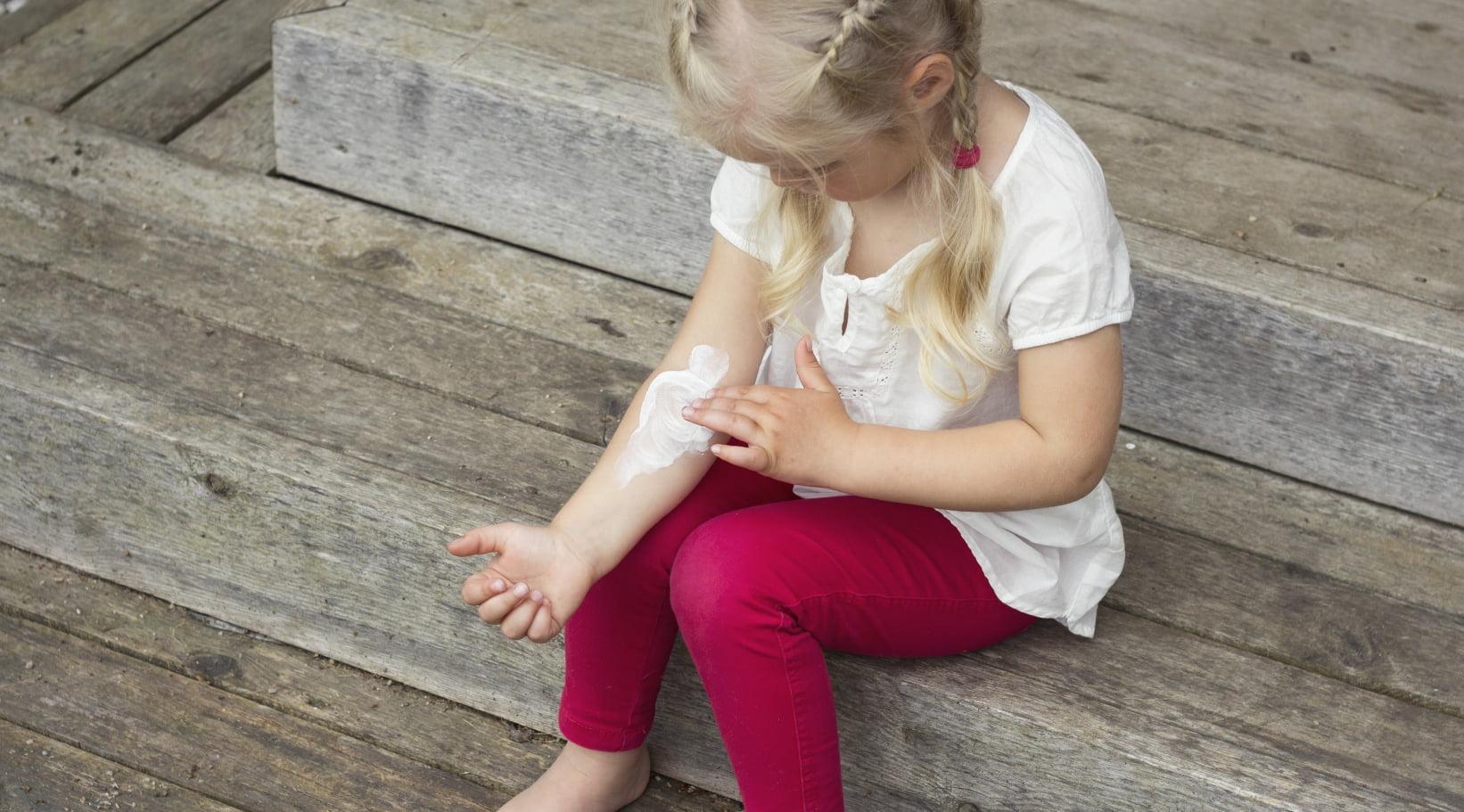 child applies cream to arm