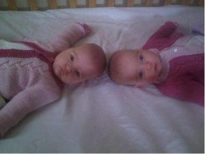 Sutherland twins at 6 months
