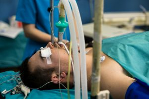 ventilated patient