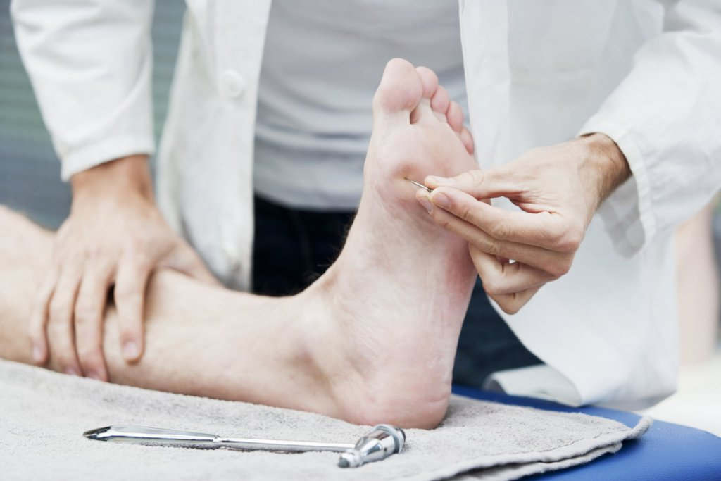 Doctor testing sensibility of foot in person with diabetes