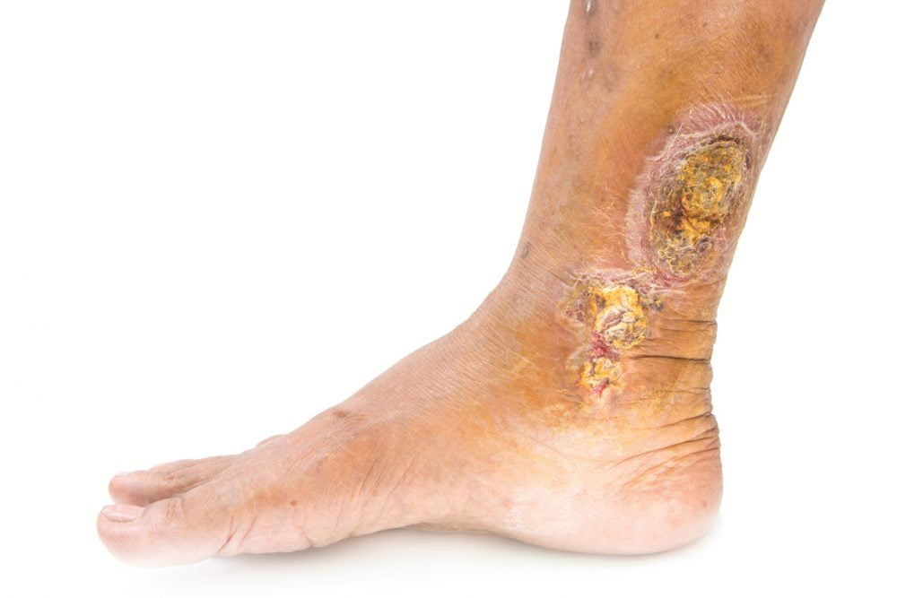 Venous leg ulcers: evidence review - Evidently Cochrane
