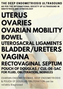 With the deep endometriosis ultrasound, ovarian endometriosis, deep endometriosis and pouch of douglas obliteration can be reliably diagnosed