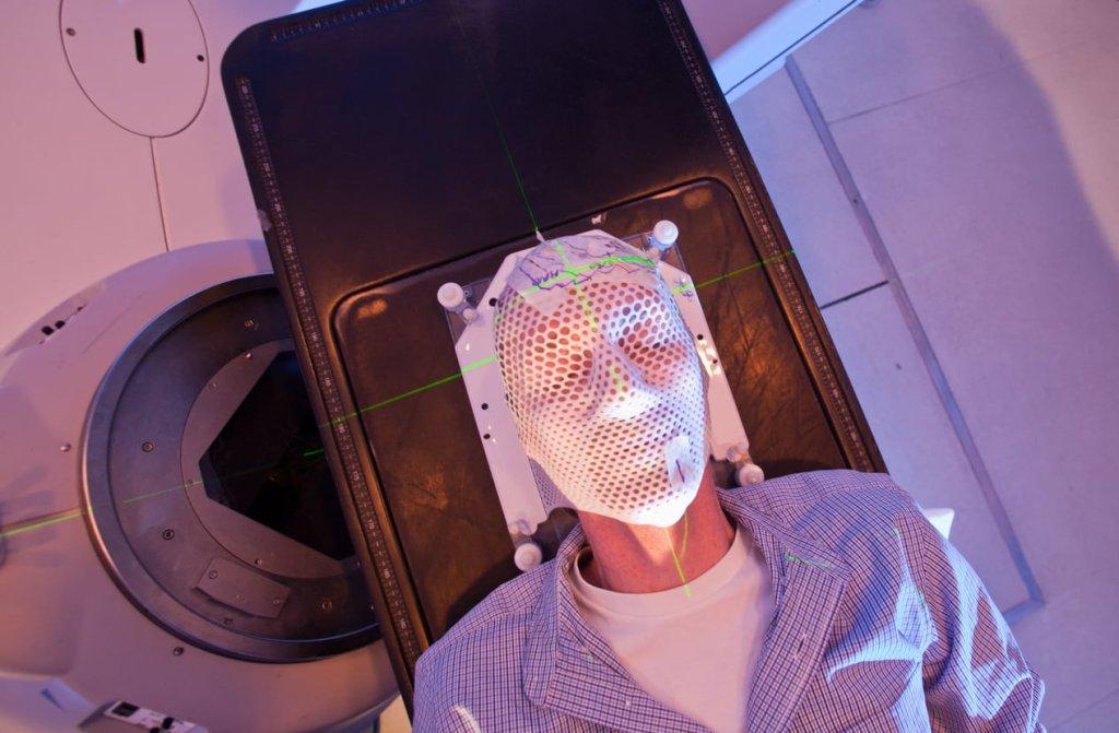 Person having head radiotherapy treatment