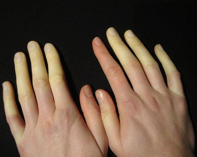 Raynaud's Phenomenon - discoloured fingers